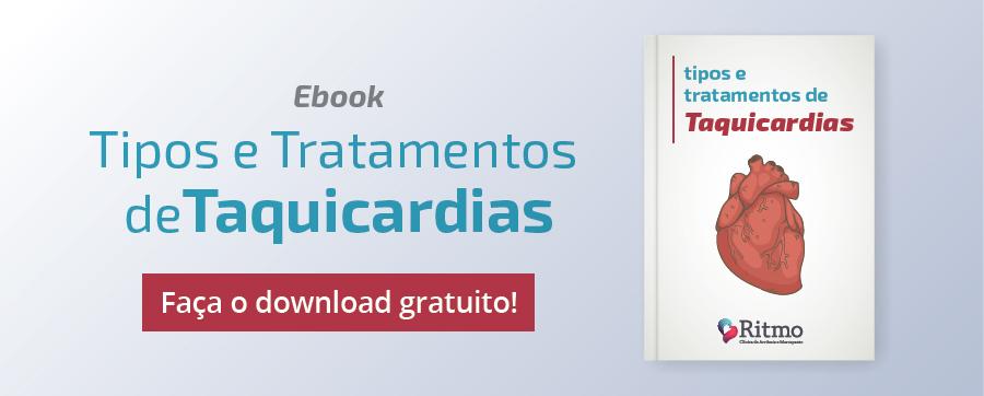 taquicardias-ventriculares